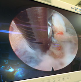The endoscope removes portions of a herniated disc