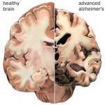 alzheimer_disease