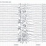 stroke-monitoring