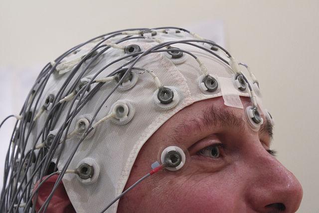Complex partial seizures while sleeping